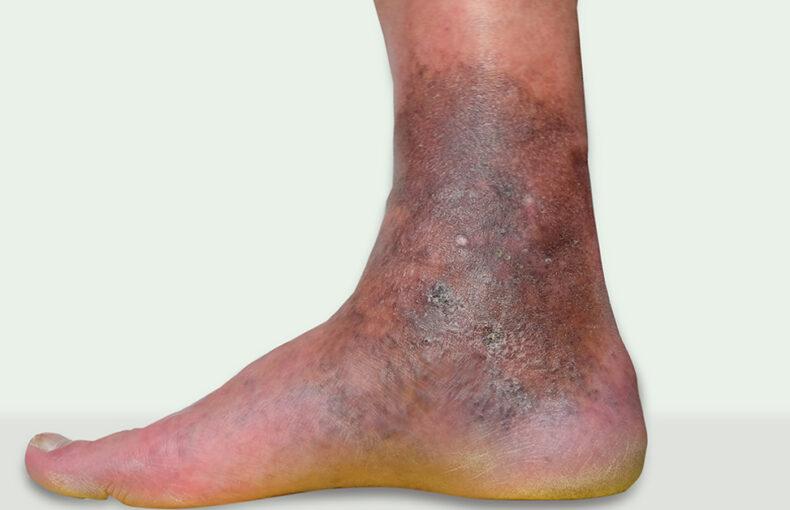 ulcer-varicos
