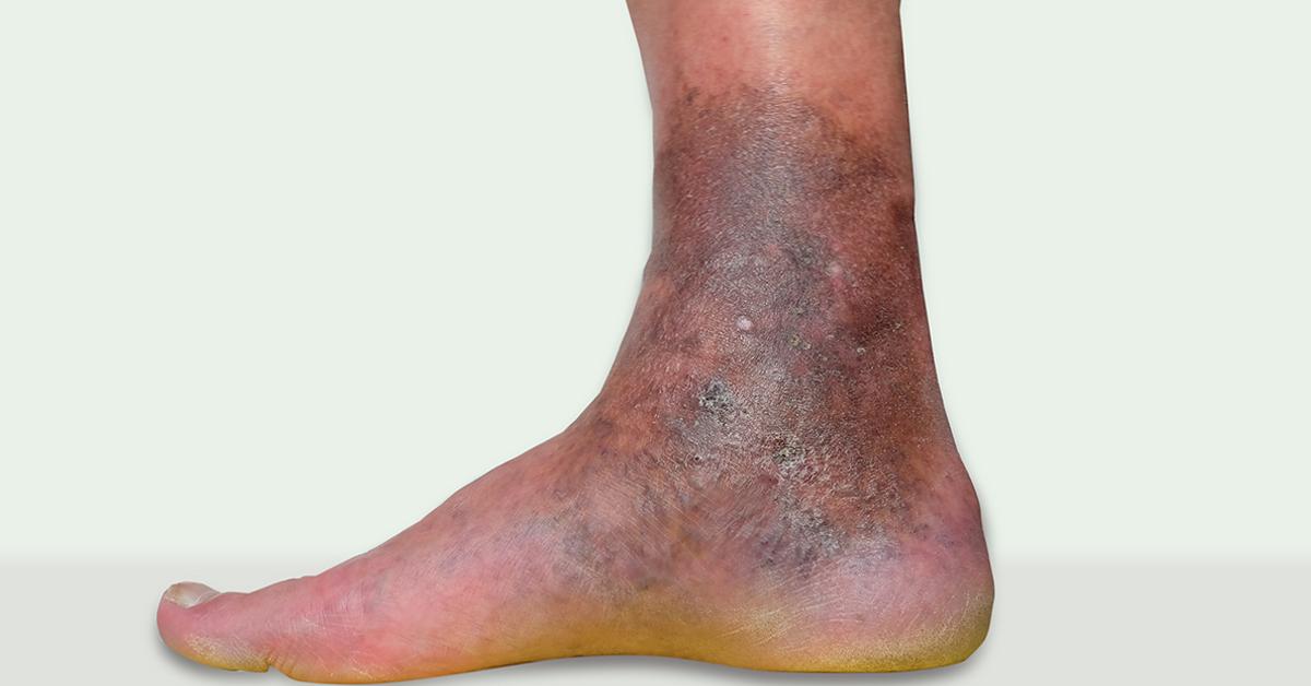 venele varicoase în trecerea din spate medicină pentru varicoză
