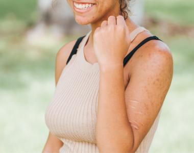 Cicatricile și protecția solară specială
